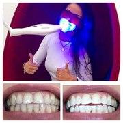 Салон Косметического отбеливания зубов